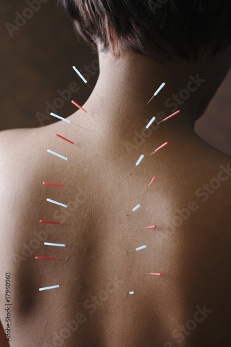 Acupuncture needles in African woman's back