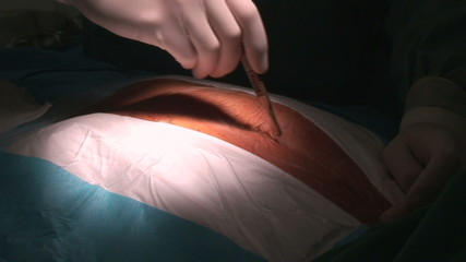 surgical skin incision