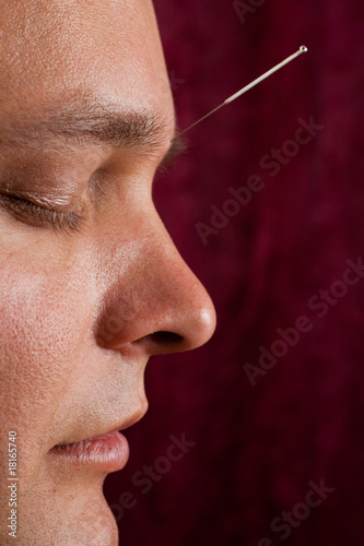 Close up of an acupuncture patients face