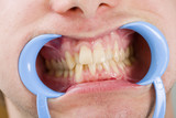 Congestioned teeth poster