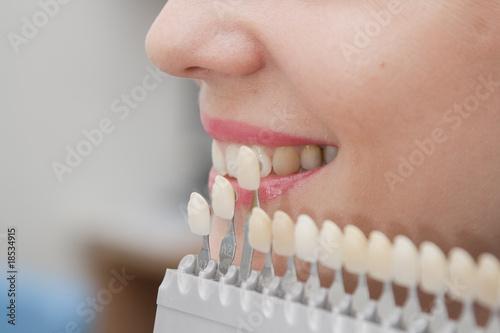 Choice of color of a dental artificial limb.  Close-up - 18534915