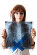 woman wiht x-ray image of lungs