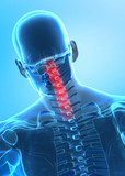 Pain in cervical spine concept x-ray view poster