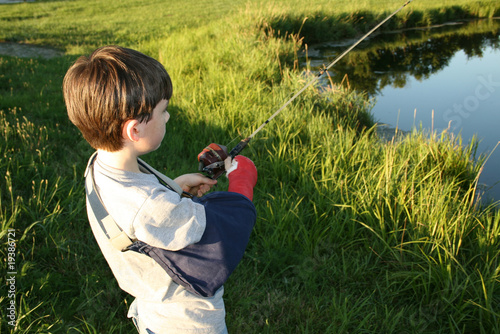 Boy fishing with broken arm