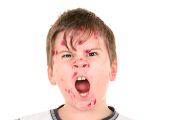 Boy is ill with  chicken pox