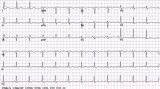Example of a normal 12-lead sinus rhythm ECG poster