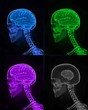 Against racism concept - x-ray human brains with one smaller