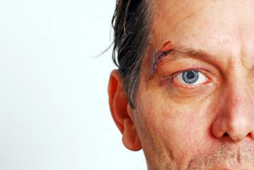 Genähte Augenbraue