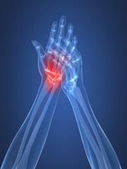 Schmerzen in der Hand - Röntgenillustration