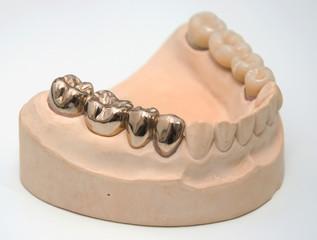 Zahnersatz - Goldkrone