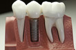 Capped Dental Implant Model - 20185389