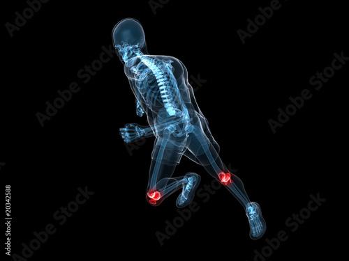 laufendes Skelett mit rot markierten Kniegelenken