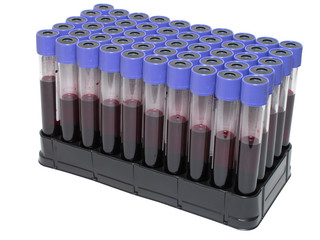 Vacuum venipuncture test tubes with blood.
