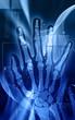 Illustration of X-ray film of hand