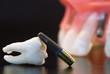 Real Human Wisdom tooth, Dental Implant and Plastic teeth model