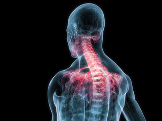 markierte Nackenschmerzen am menschlichen Skelett