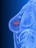 weibliche Brust mit Tumor poster