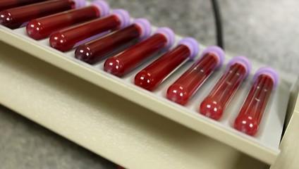 Laboratory Blood Mixer