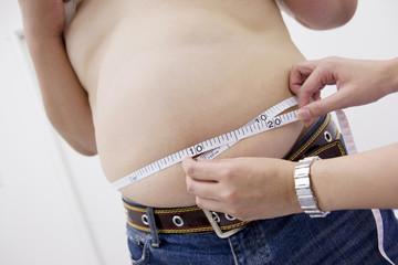 肥満男性の腹周りを測る女性の手元