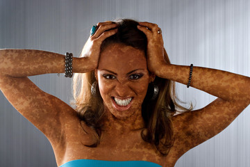 Vitiligo Skin Condition