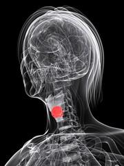 weiblicher Kehlkopf mit Tumor