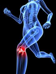 laufendes Skelett mit schmerzendem Kniegelenk