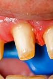 Buffed teeth - prosthetic rehabilitation poster