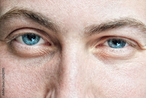 Closeup of young man's blue eyes with problematic skin