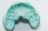Dental imprint - impression taken with silicone material poster
