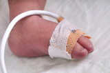 Close up of a baby foot - INTENSIVE CARE