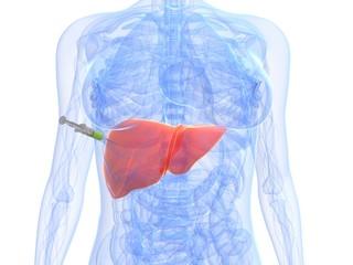 Injektion - Biopsie