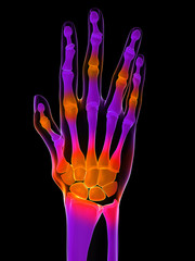 schmerzhafte Hand und Fingergelenke