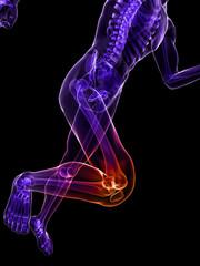 transparenter Jogger mit schmerzendem Kniegelenk