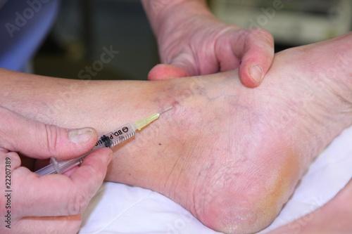Varice cheville photo libre de droits sur la banque d for Douleur pied exterieur