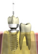 Zahnersatz_Implantat