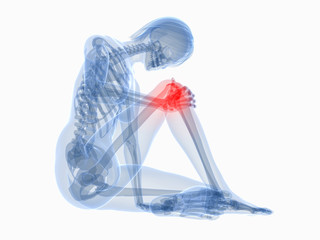 sitzende transparente Frau mit schmerzendem Knie