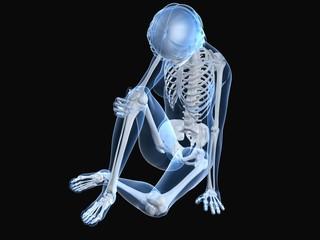 menschliches Skelett - schmerzendes Kniegelenk