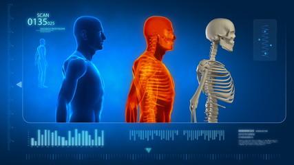 Medical display in loop - skeleton and x-ray