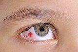High resolution macro photo of an infected child eye poster