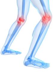rot markierte Kniegelenke