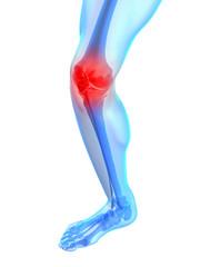 transparentes Bein mit schmerzendem Kniegelenk