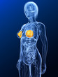 transparenter Körper mit markierten Brustdrüsen
