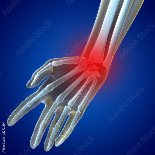 Wrist  Pain