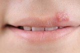 Close up of lips affected by herpes. poster
