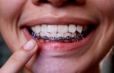 mouth with dental brace