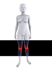 3d Modell  - Frau mit schmerzenden Knien