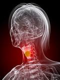 markierter Kehlkopf mit Tumor poster