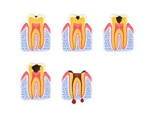 虫歯の段階