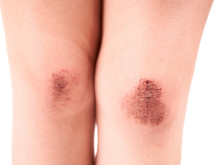 Scraped knees of a little girl