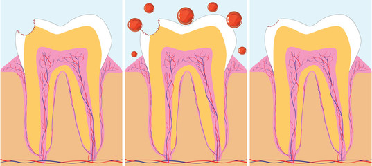 Three phase of caries treatment, vector illustration